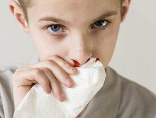 Dlaczego leci krew z nosa? Poznaj możliwe przyczyny
