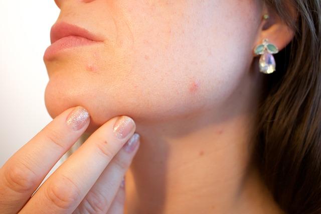 Jak radzić sobie z łojotokowym zapaleniem skóry twarzy?